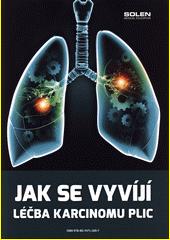 Jak se vyvíjí léčba karcinomu plic (odkaz v elektronickém katalogu)