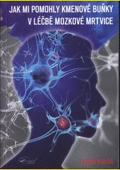 Jak mi pomohly kmenové buňky v léčbě mozkové mrtvice  (odkaz v elektronickém katalogu)