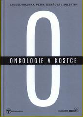Onkologie v kostce  (odkaz v elektronickém katalogu)