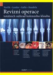 Revizní operace totálních náhrad kolenního kloubu  (odkaz v elektronickém katalogu)