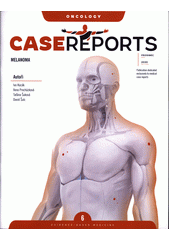 Case reports melanoma  (odkaz v elektronickém katalogu)
